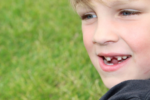a child having chipped teeth