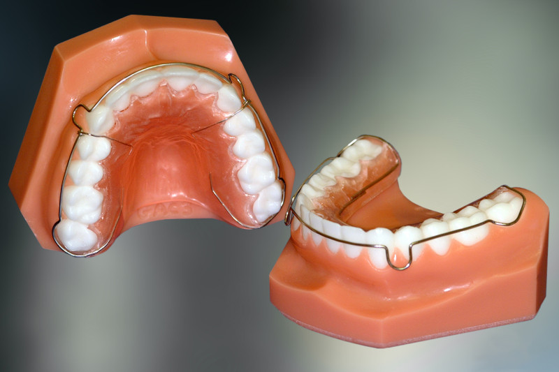 Straight Wire Braces Help In Straight Teeth Dr Sunil