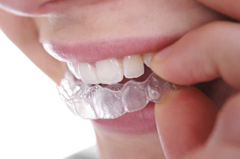 invisble clear braces