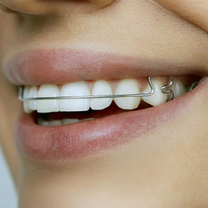 Braces Without Wire | Straight Wire Braces Help In Straight Teeth Dr Sunil Dental Blog