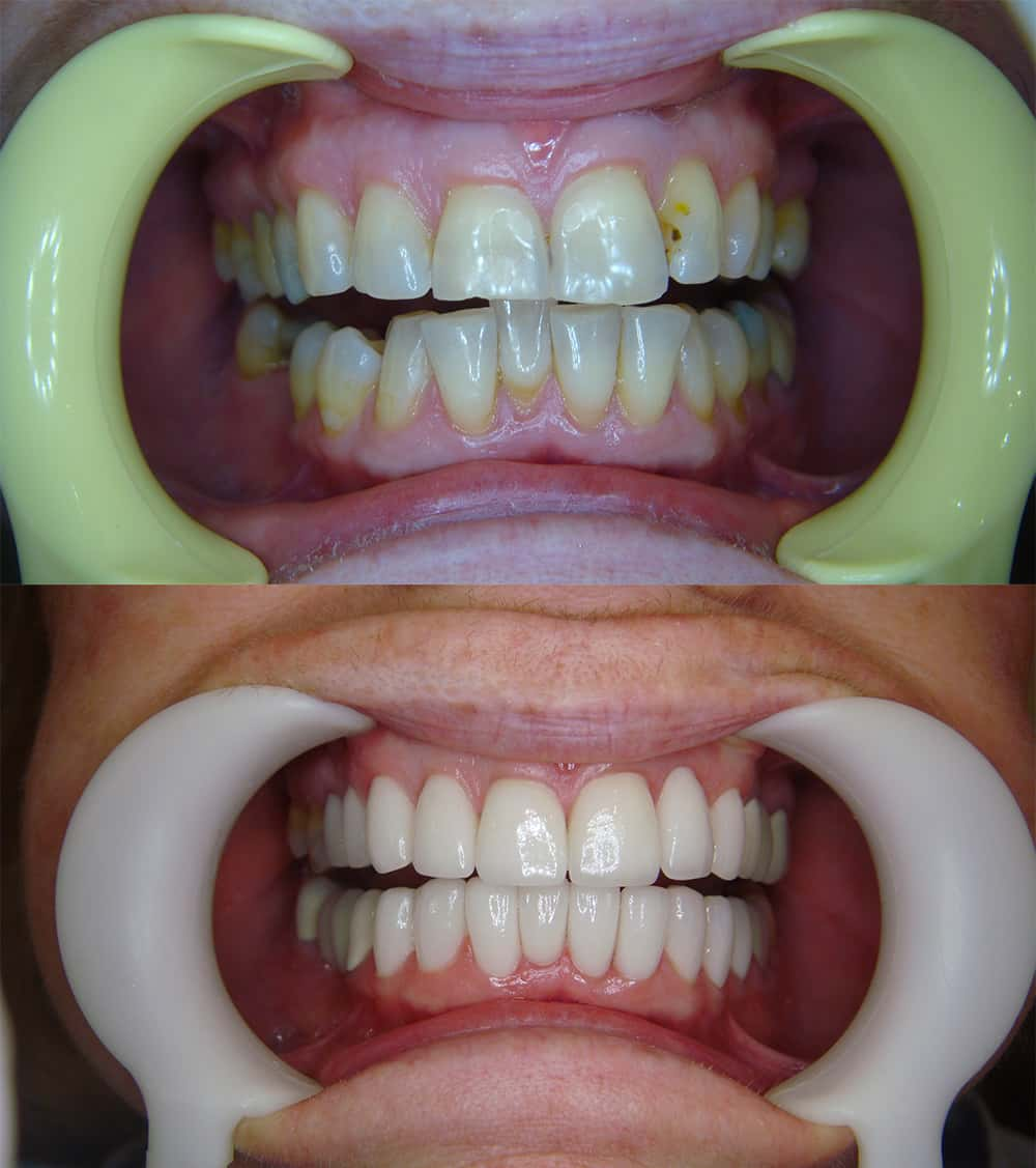 Ceramic Crown and Bridges in Bangkok, Thailand | Porcelain Crowns in