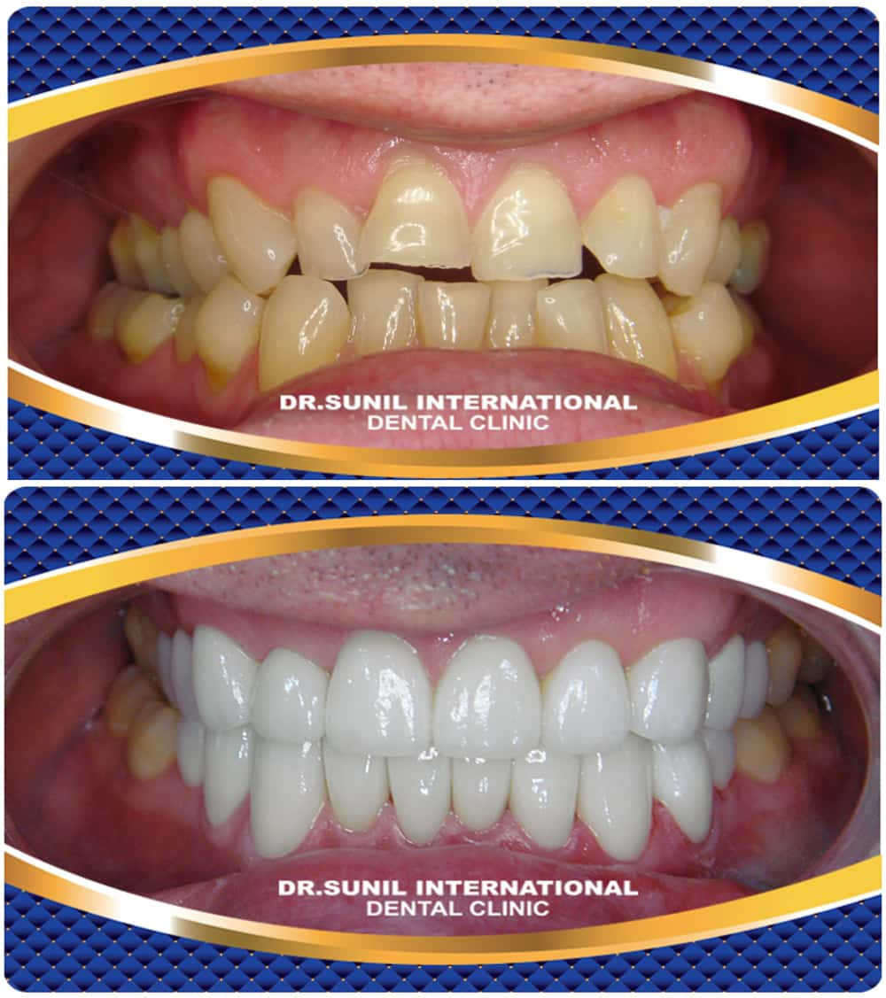 Full Mouth Reconstruction in Bangkok, Thailand | Dr  Sunil