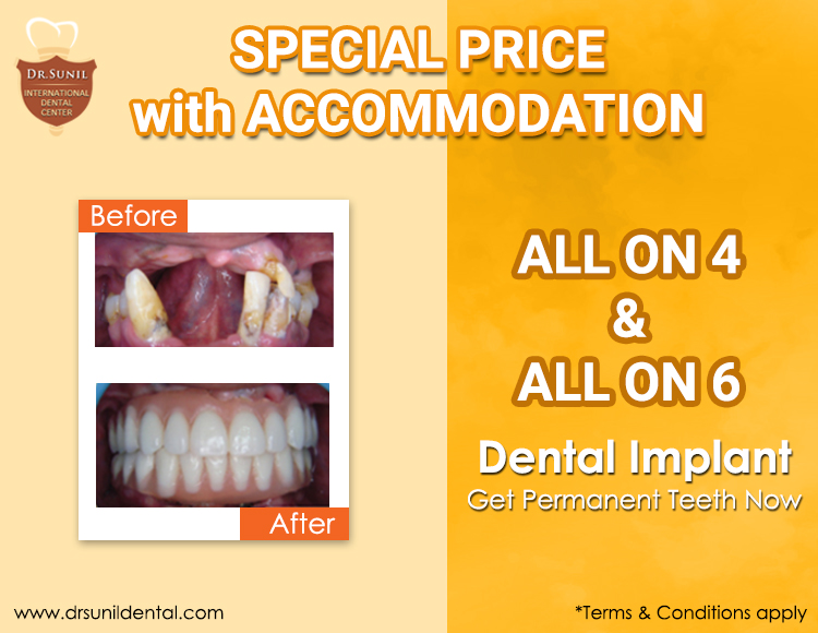 Dental Implant Offer