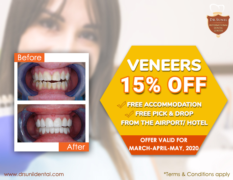 Dental Veneer Offer