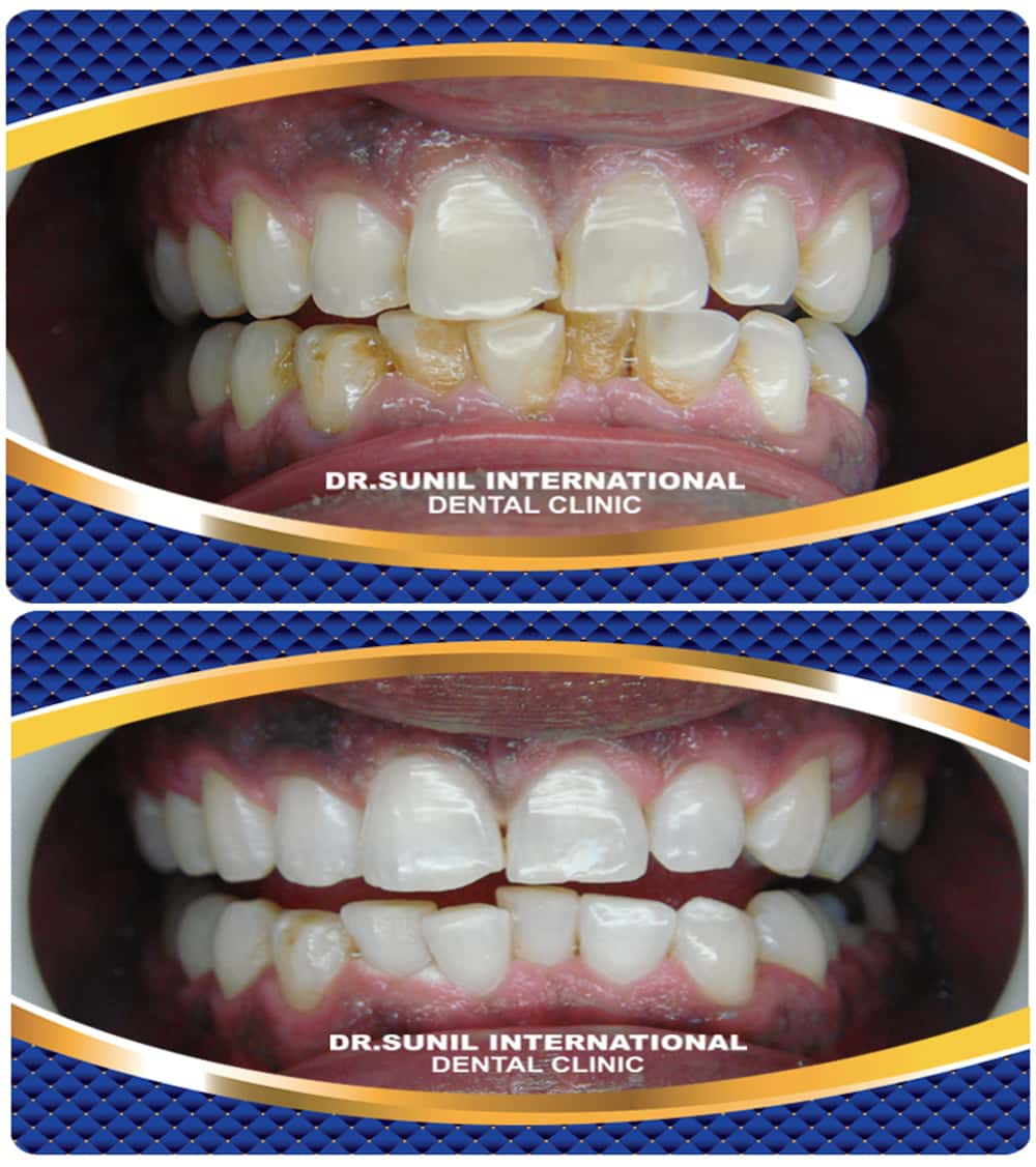toothwhitening service5
