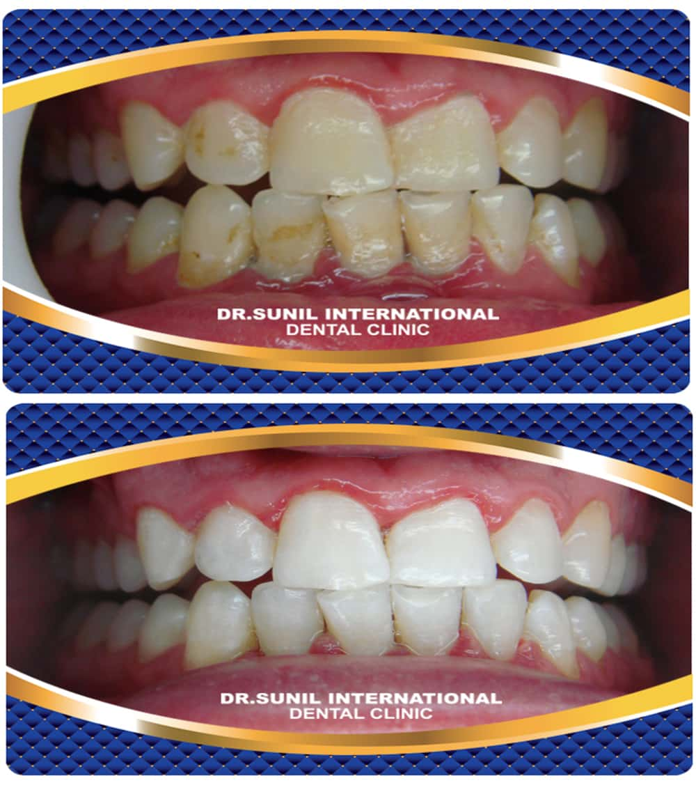 toothwhitening service6