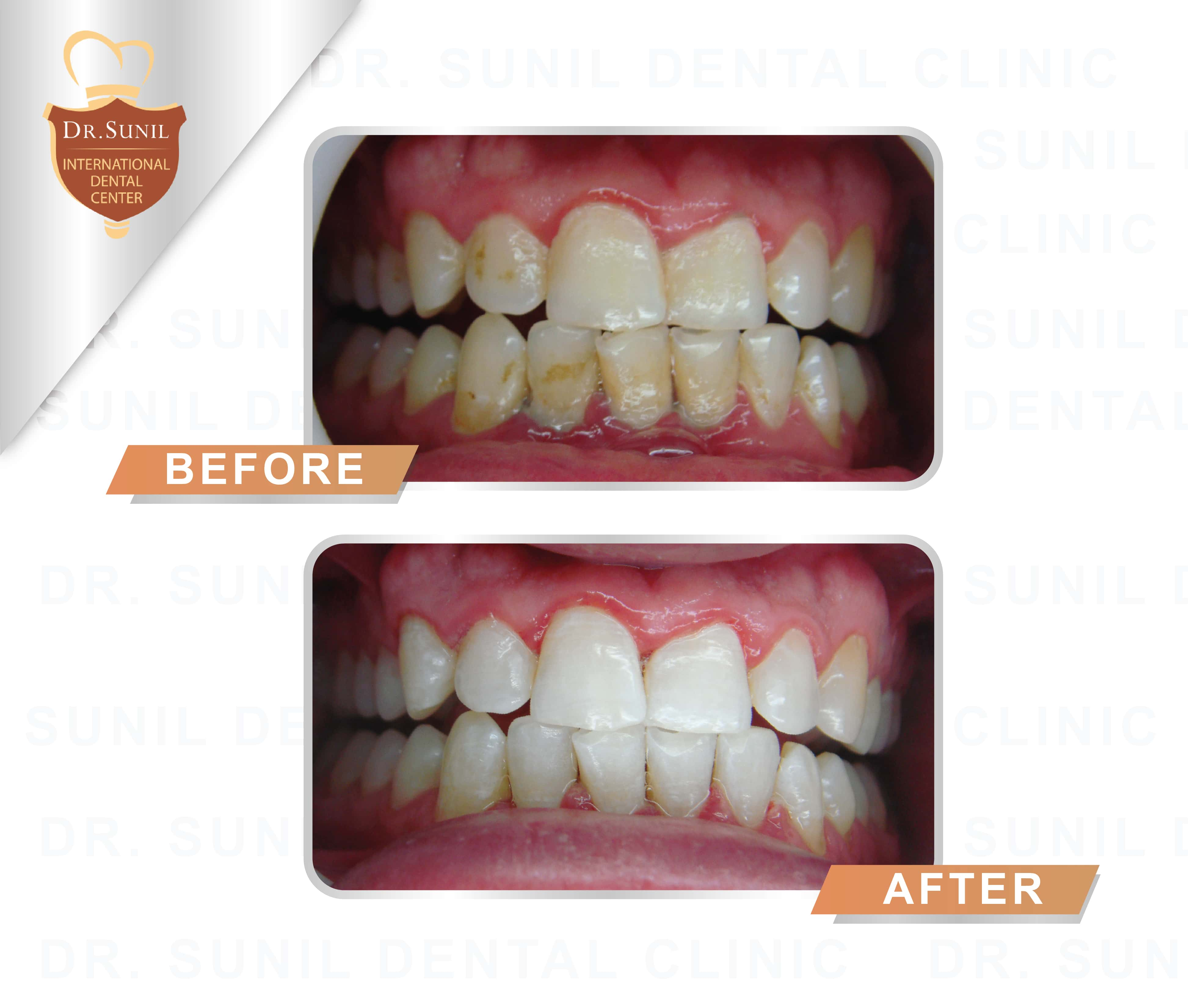 toothwhitening service1