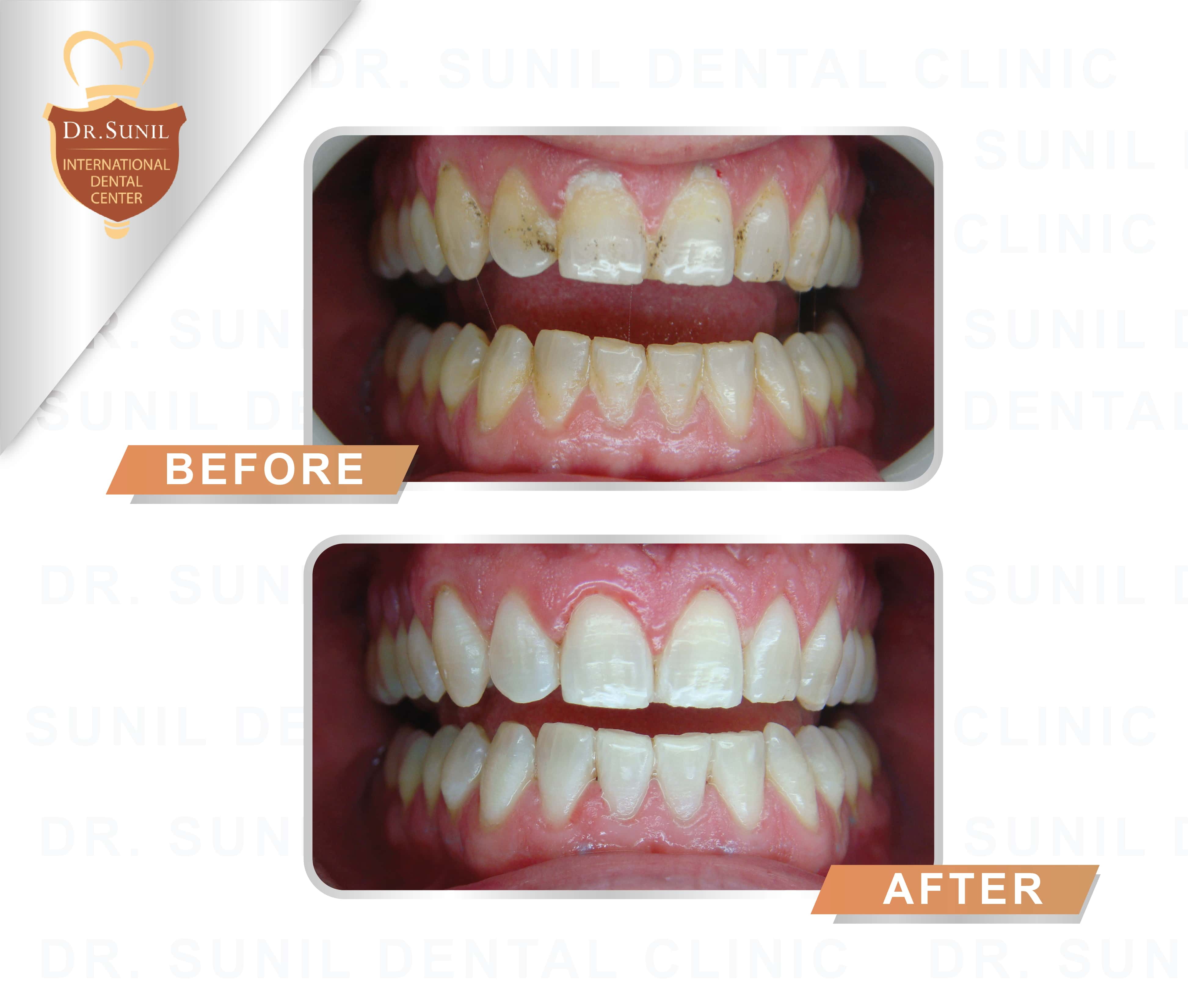 toothwhitening service3